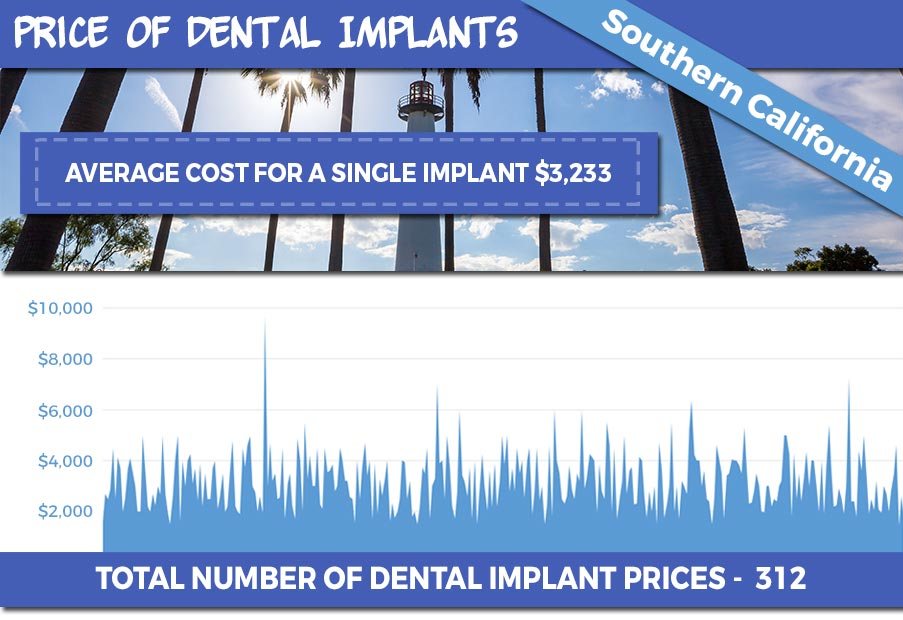 Prices of Dental Implants from over 300 Dentist in Southern California